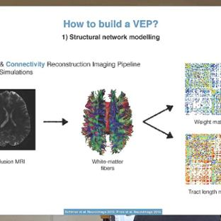 TVB Node 6 - Berlin: Julie Courtiol - Clinical applications of The Virtual Brain - Epilepsy