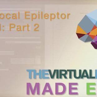 TVB Made Easy: The Local Epileptor: Part 2