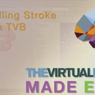 TVB Made Easy: Modelling Strokes within TVB